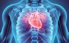 Herzoperation PTCA